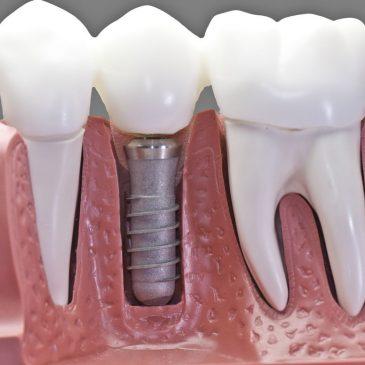 implante dentário edu chaves, implante dentário zona norte edu chaves, implante dentário parque edu chaves, implante dentário zona norte parque edu chaves, implante dentário preço, implante dentário gratuito, implante dentario valor 2020, implante dentário dói, implante dentário valor, implante dentário valor 2018, implante dentario antes e depois, implante dentario como é feito, implante dentario gratuito 2019, implante dentário recuperação, implante dentário pelo sus, como é feito implante dentario, novo tipo de implante dentário, fiz implante dentario e esta doendo, como fazer implante dentário, implante dentário total, implante dentário fotos, implante dentario valor 2018, inscrição para implante dentario gratuito 2019, tomografia para implante dentário preço, implante dentário passo a passo, implante dentário como funciona, implante dentário gratuito pelo sus, implante dentário antes e depois, implante dentário inflamado, implante dentário bh, como conseguir implante dentario pelo sus, como apertar implante dentario, antibiotico para implante dentario, implante dentario gratuito 2019 sp, implante dentario tipo protocolo fotos, implante dentário fortaleza, o que substitui um implante dentario, implante dentário gratuito sp, implante dentário rj gratuito, implante dentário quanto custa, como funciona implante dentário, implante dentário ortodontia, implante dentário barato, implante dentário mole, implante dentário inferior, implante dentario o que é, implante dentario londrina, implante dentário dente da frente, implante dentário aracaju, implante dentário mais barato, antiinflamatório para implante dentário, cid para implante dentário, implante dentário valor 2019, implante dentário sus, implante dentário manaus, como é implante dentario, implante dentario doi yahoo, implante dentário superior, implante dentário na usp, quem tem implante dentário pode fazer ressonância, como colocar implante dentário, implante dentario all-on-4 preço, implante dentario tempo de
